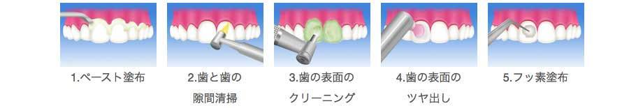 ペースト塗布のイラスト 歯と歯の隙間清掃のイラスト 歯の表面のクリーニングのイラスト 歯の表面のツヤ出しのイラスト フッ素塗布のイラスト