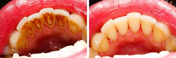 歯のお掃除前と後の比較写真