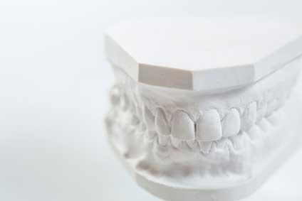 歯の模型の写真