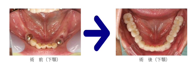 下顎の前後の写真