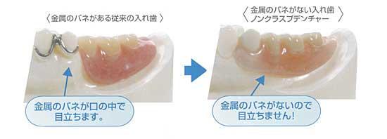 バネがない入れ歯の写真
