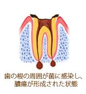 歯の根の周囲が菌に感染した状態のイラスト