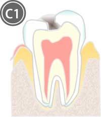 エナメル質内の虫歯のイラスト