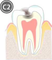 象牙質に達した虫歯のイラスト