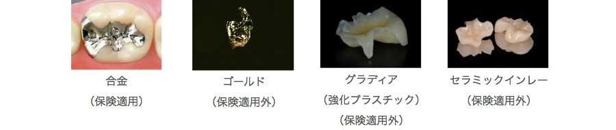 合金の写真 ゴールドの写真 グラディアの写真 セラミックインレーの写真