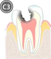 神経に達した虫歯のイラスト