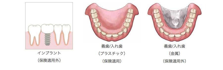 インプラントのイラスト プラスチック入れ歯のイラスト 金属入れ歯のイラスト
