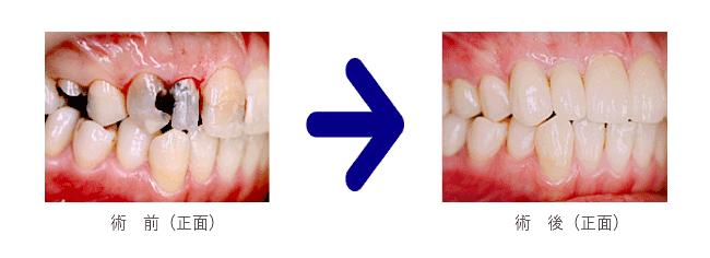 審美歯科治療前後の写真