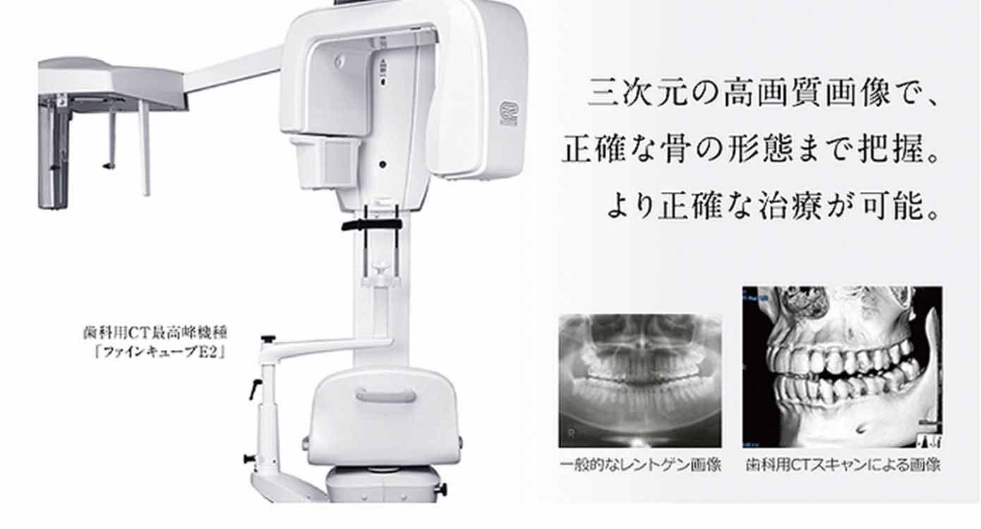 歯科用CTを導入