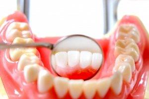 歯茎 が 腫れ てる